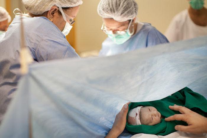 علل گرایش مادران باردار به سزارین