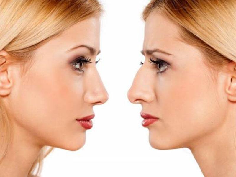تفاوت بینی گوشتی و استخوانی